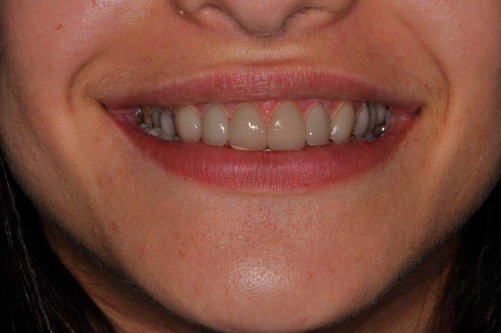 dental-before2